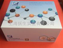 人I型胶原交联氨基端肽(NTXI)elisa测定试剂盒操作步骤